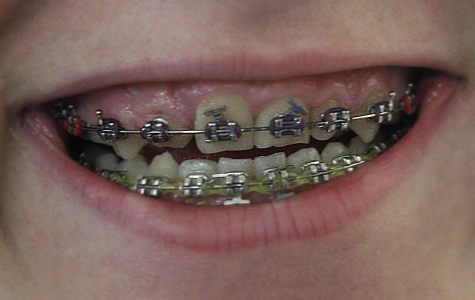 Being a braceface – Op-Ed
